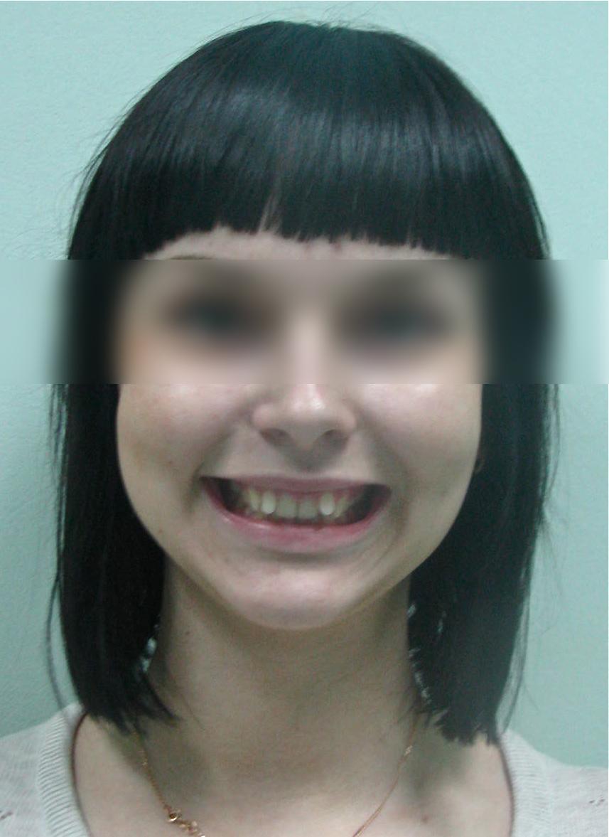 Если только два передних зуба кривые
