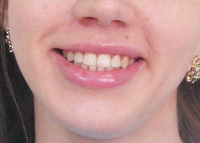 Нижние з�б� впе�еди ве��ни� е��� не�доб��ва п�и жевании